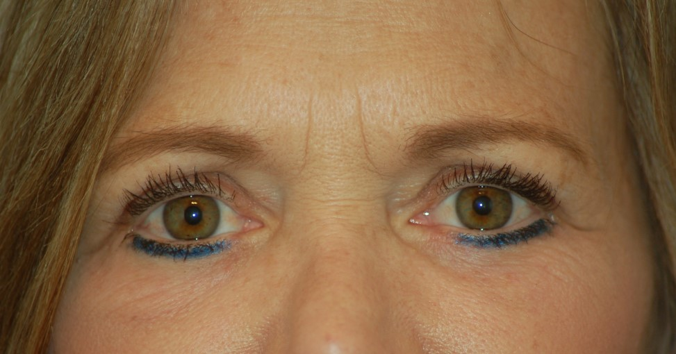 Lower eyelids and laser-after
