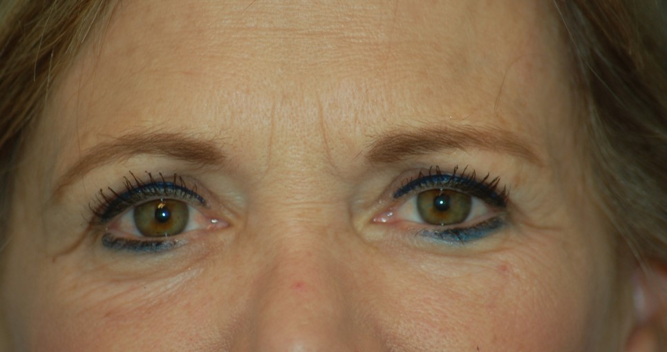 Lower eyelids and laser-before