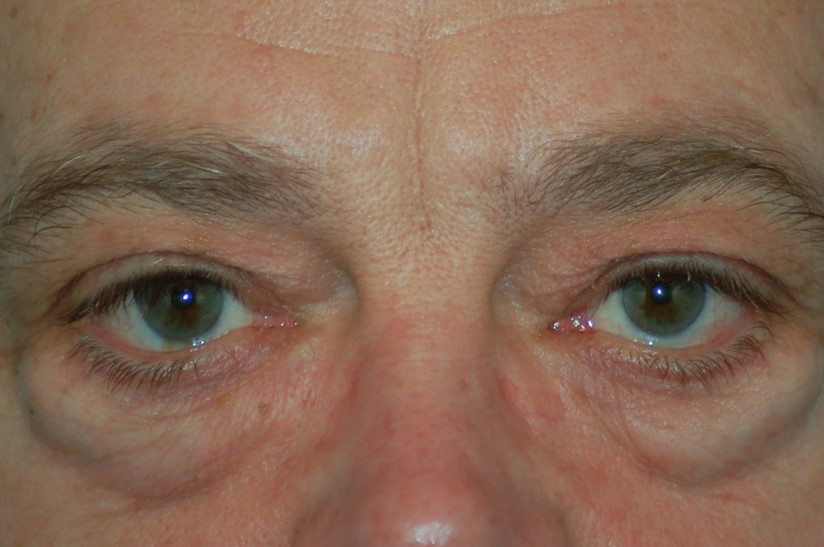 Lower eyelids-before
