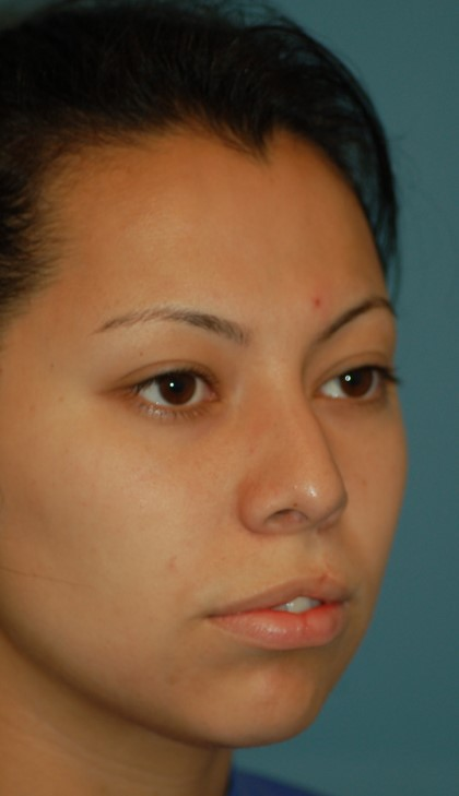 Open cleft rhinoplasty and lip scar revision-before