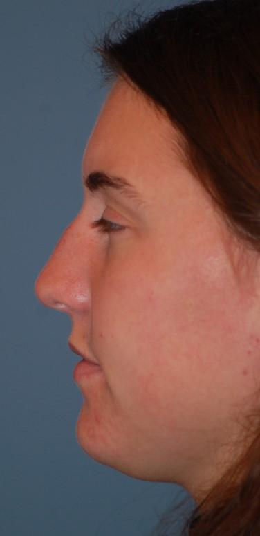 Open rhinoplasty before