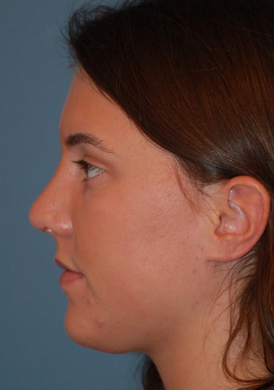 Open rhinoplastyafter