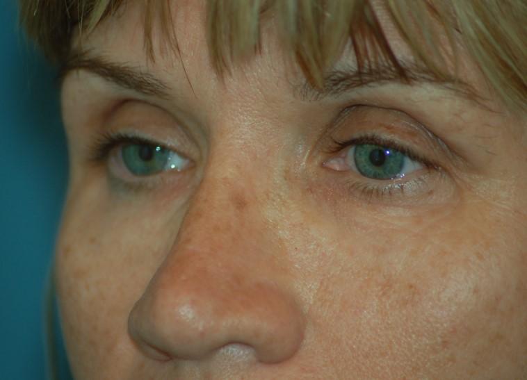 Periorbital laser before