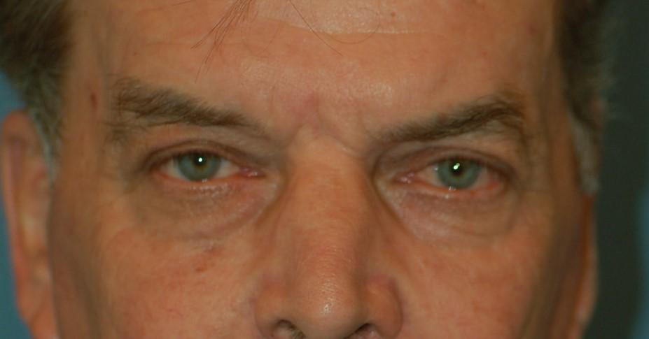 Upper eyelids-after