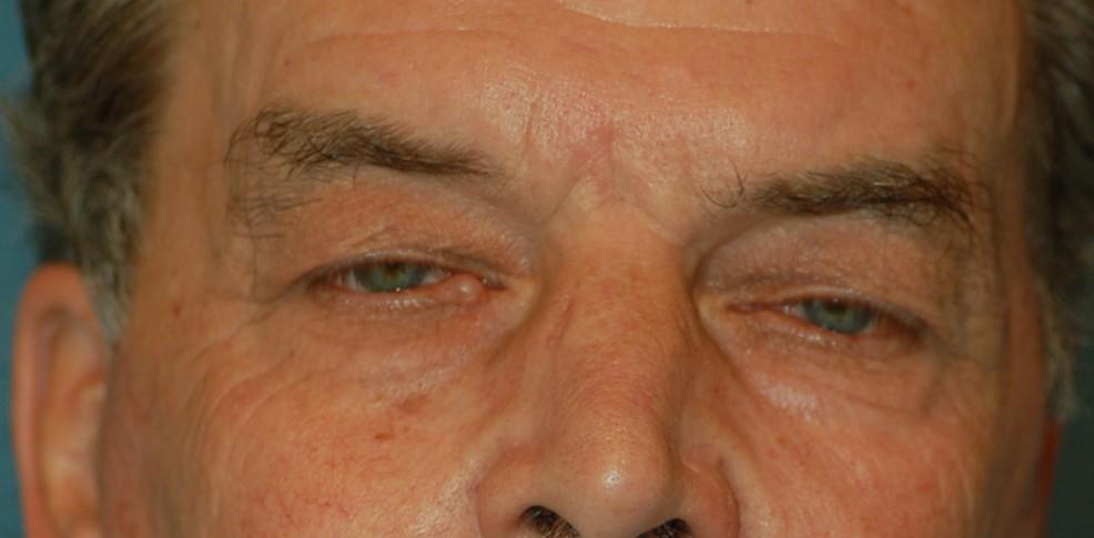Upper eyelids-before