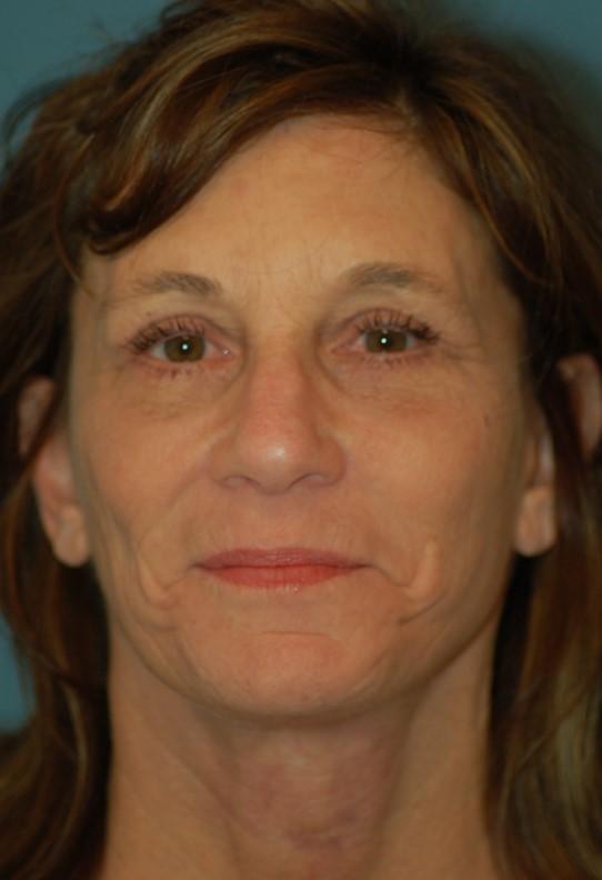 Upper lower eyelids - after