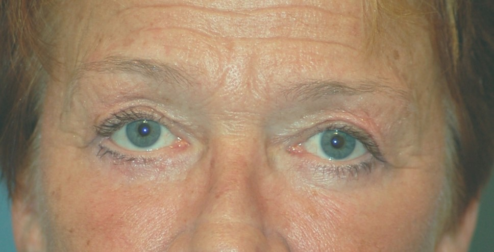 Upper lower eyelids and laser after