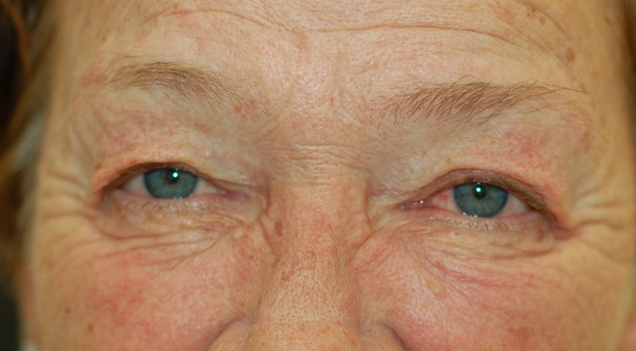 Upper lower eyelids and laser before